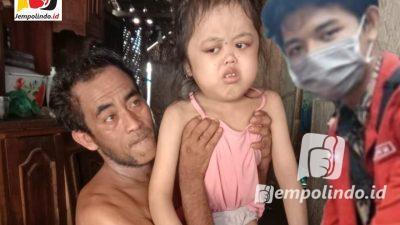 Siti Nurhaliza Potret Stunting, Warisan Kemiskinan Jember