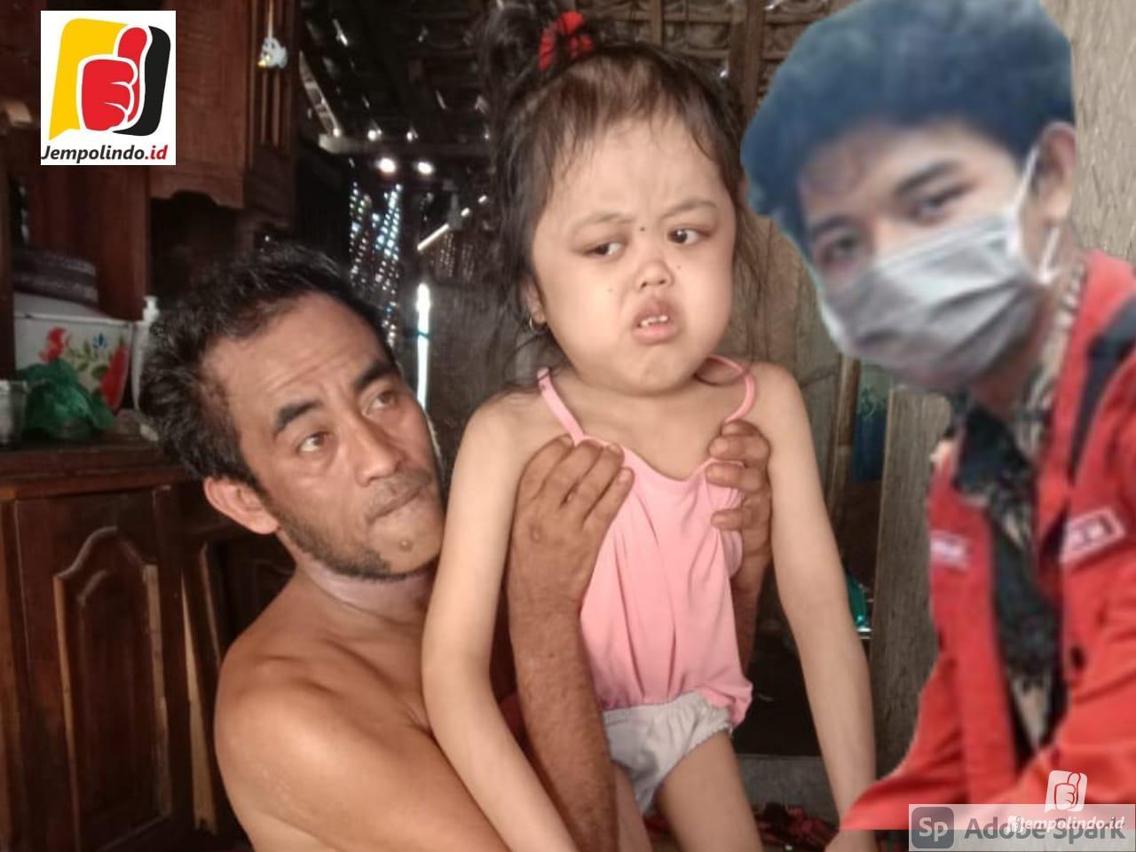Siti Nurhalisa Potret stunting jember